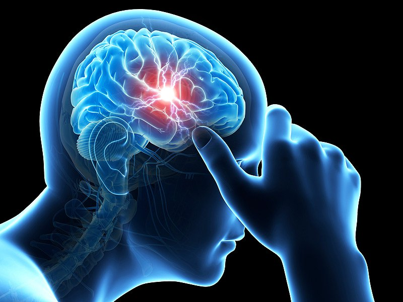 Not all headaches hurt in the same way: